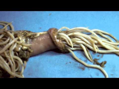 paraziti u crevima ljudi)