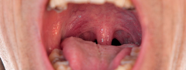 cancer por papiloma en garganta papilom uman pe uter