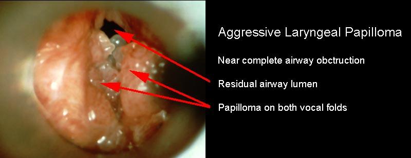 laryngeal squamous papilloma