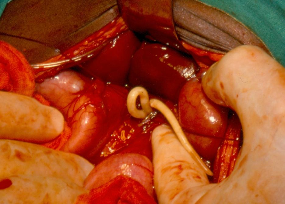 helminth parasitic disease pisica nu mănâncă viermi