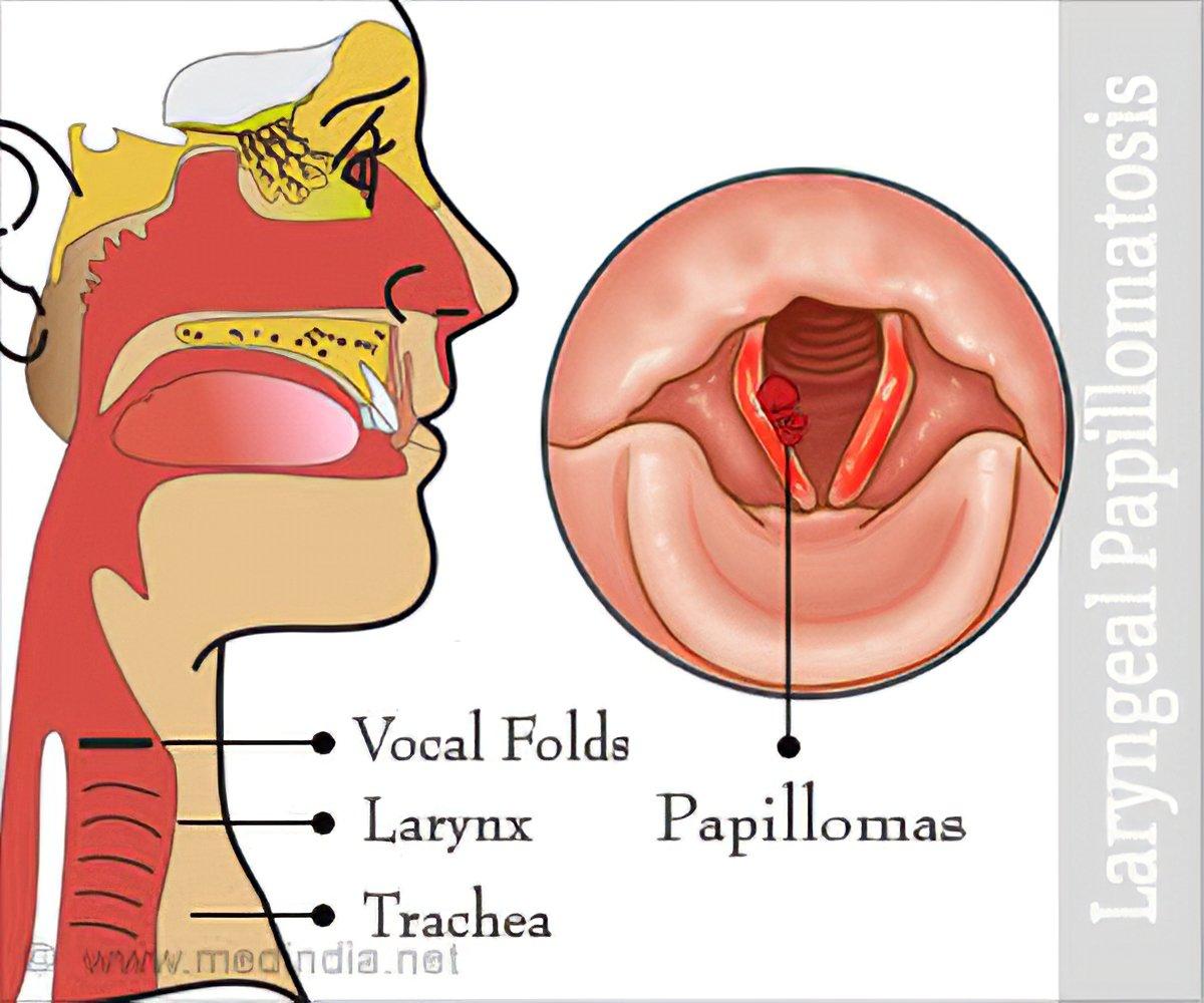 papillomas larynx viermi de peste 1 an decât tratat