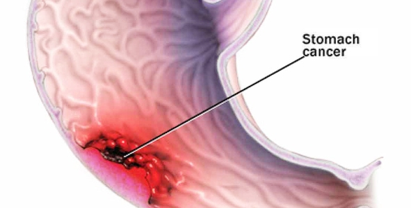 cancerul are simptome