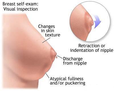 recenzii de tratament cu viermi enterosgel alimente pentru detoxifierea ficatului