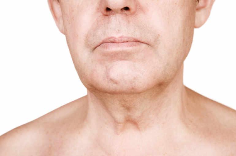 Papiloma virus gorge, HERPES PAPILLOMA VIRUS LA BARBATI | provitamedicus