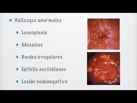 Giardia cod ljudi. Paraziti kod ljudi, Related posts
