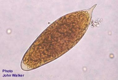 schistosomiasis medscape cancer of hepatic flexure