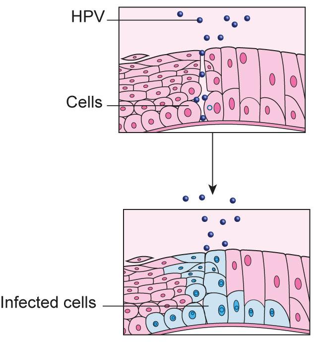 hpv become cancer human papilloma virus adalah penyebab penyakit