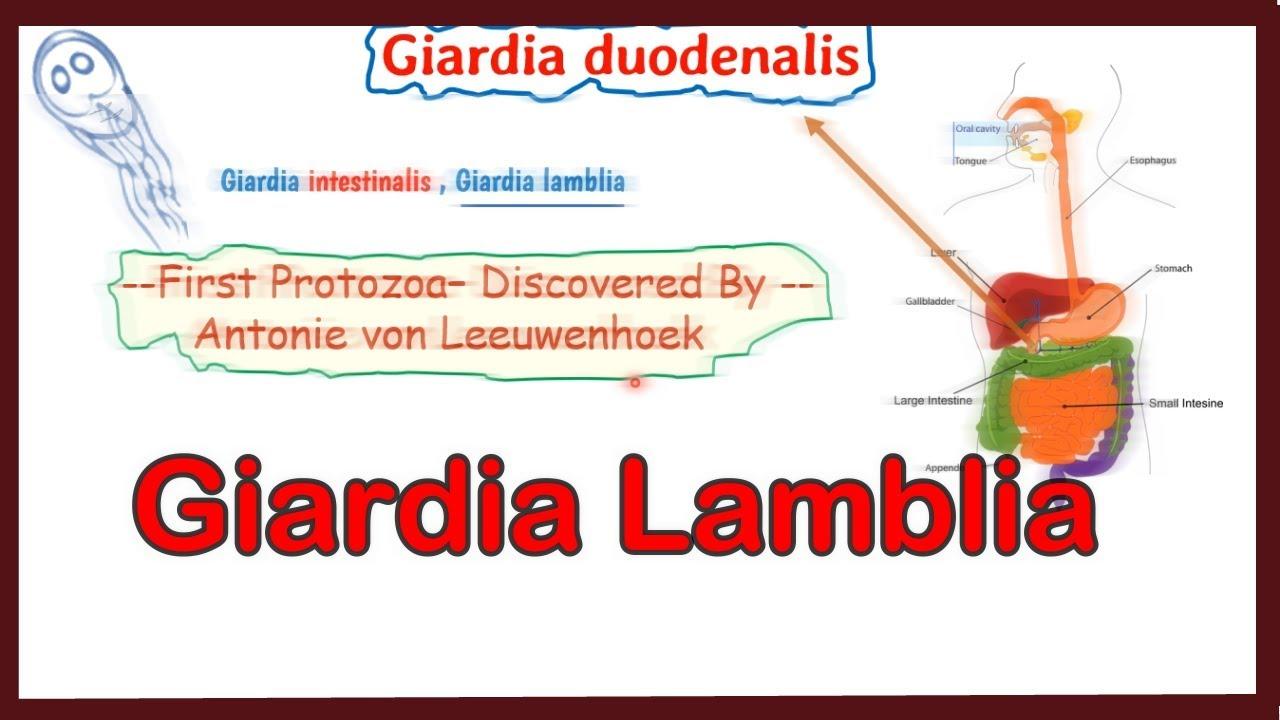 fundația giardia la bebélusi laryngeal papillomatosis types