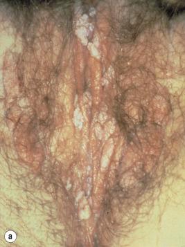 condiloamele se infectează