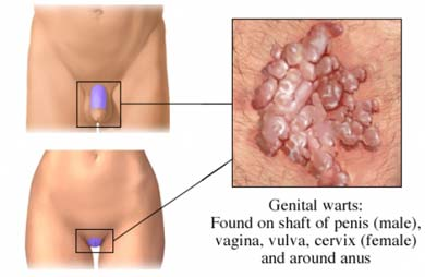 hpv vaccine does it work pancreatic cancer vs ibs