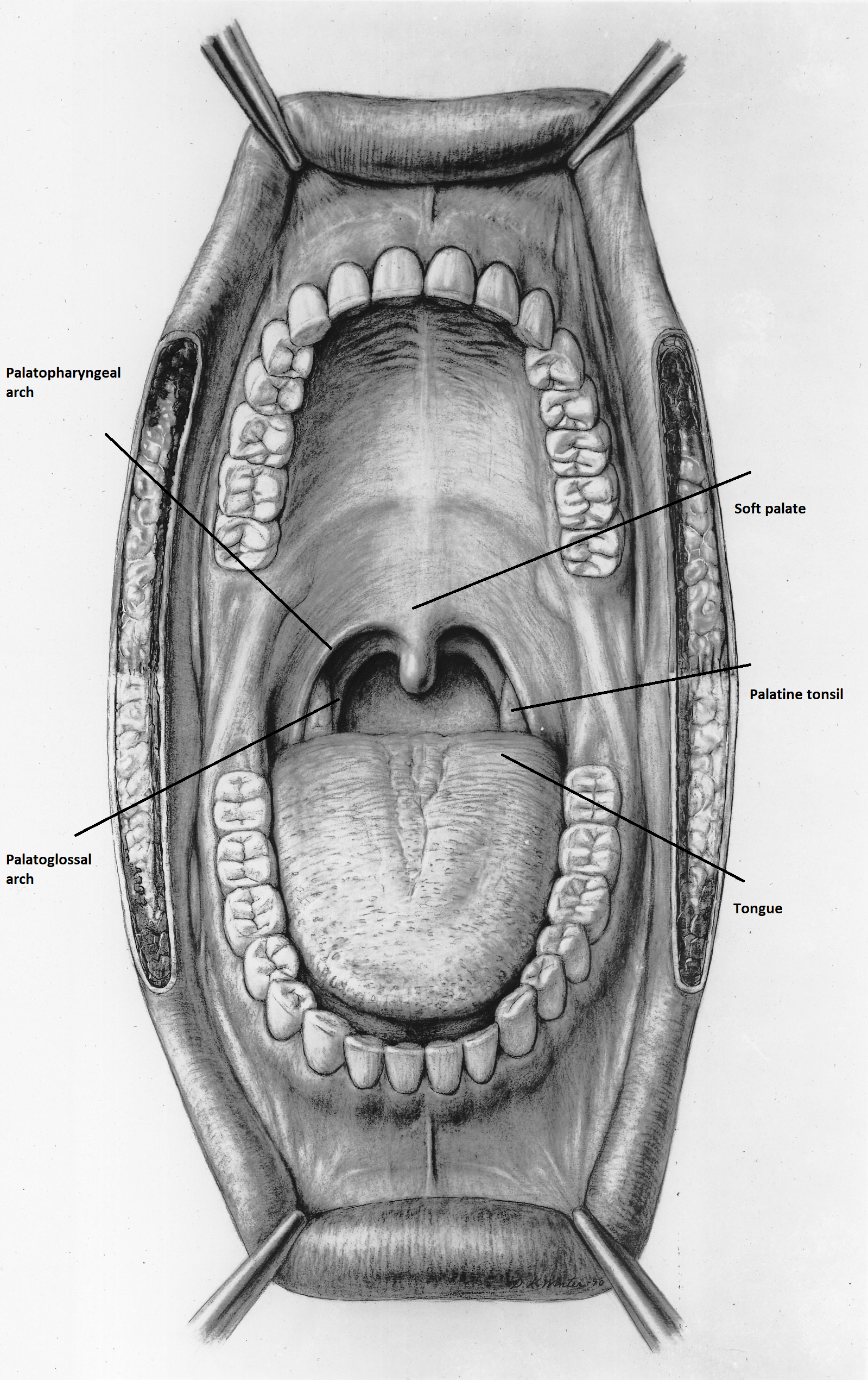 hpv positive base of the tongue cancer