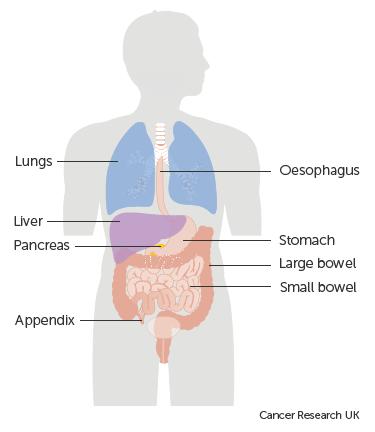neuroendocrine cancer bowel