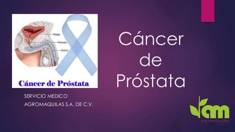 cancer de prostata diapositivas metode de îndepărtare a paraziților din organism
