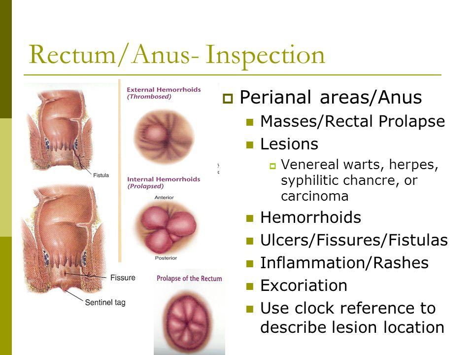 enterobius vermicularis pronounce biodescodificacion cancer de prostata