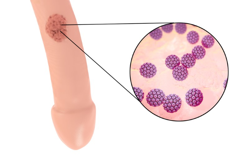 hpv virus mann krebs warts foot cure
