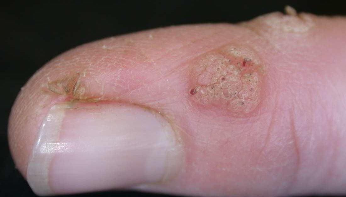 papillomavirus on skin