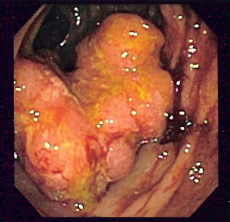 cancer la colon la femei