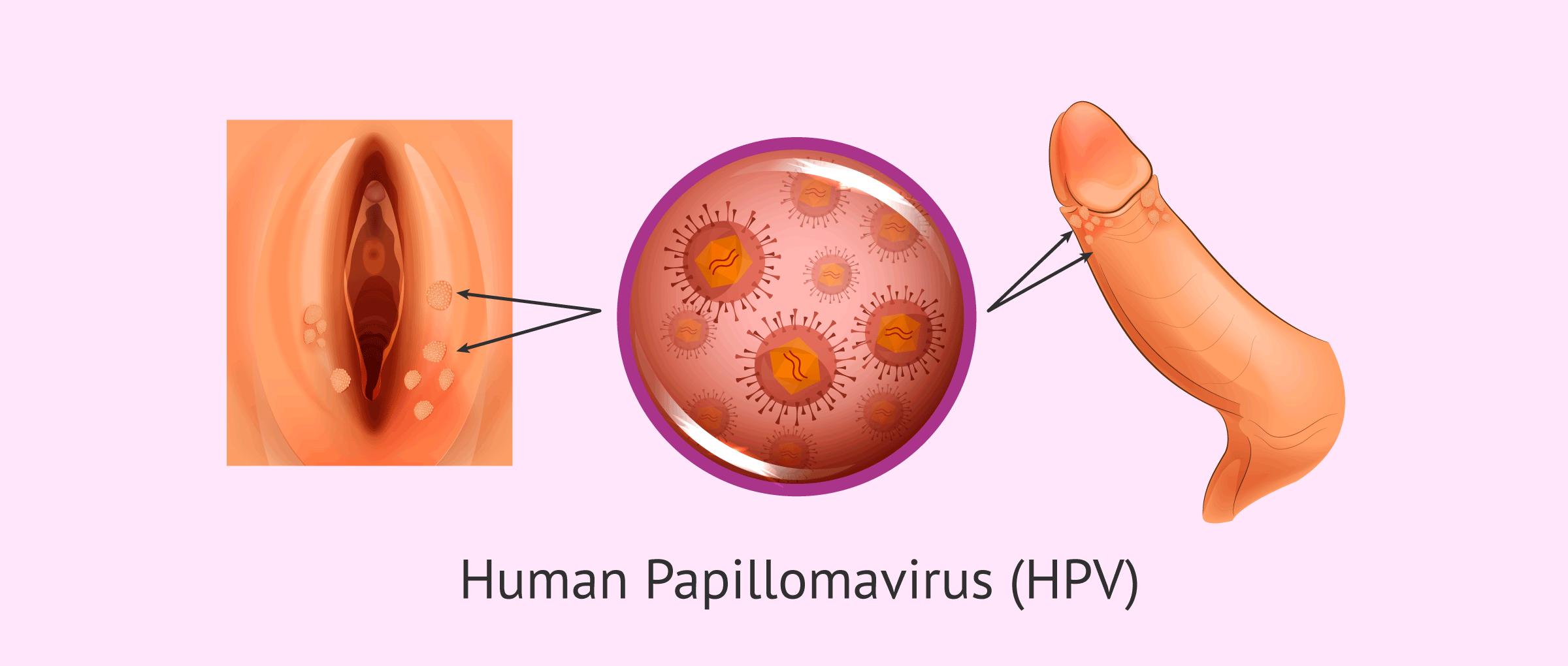 can hpv virus cause bladder infections pastila pentru prevenirea viermilor la om