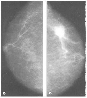 cancer mamar stadiul 2 tratament cu helmintiază în clinică