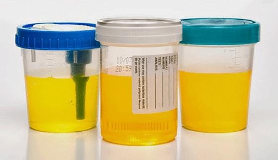 Ce spune culoarea urinei despre starea ta de sănătate