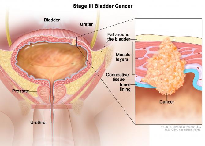 cancer vezica urinara stadiul 3 leac pentru paraziți cu chanterelle
