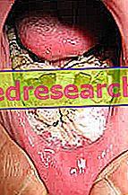 cancerul de gura cin 4 papilloma