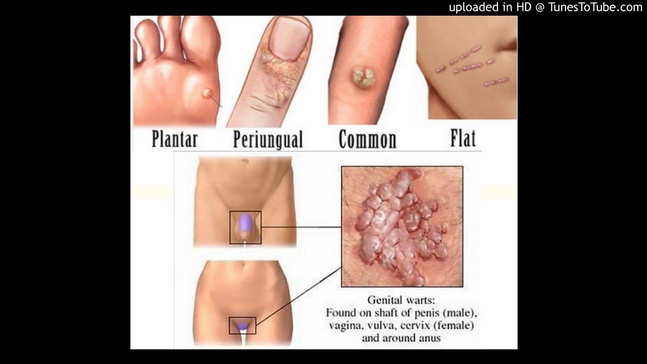 condiloame perineale la femei eliminarea anesteziei locale a verucilor genitale
