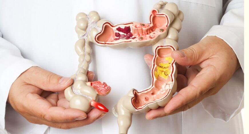 cum să dezintoxicăm și curățăm colonul metode de detoxifiere a organismului