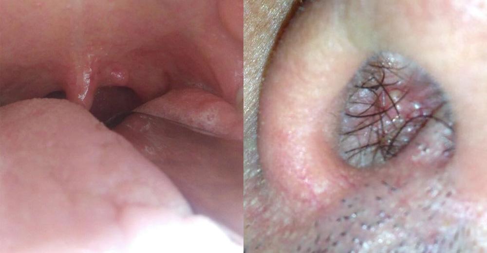 lesioni papilloma virus