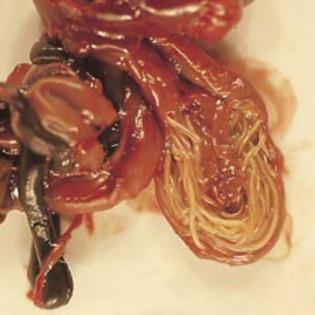 Simptome paraziţi intestinali: Tenia, Poze cu viermele tenia