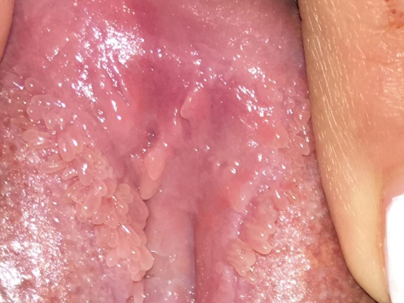 vestibular papillomatosis vs warts