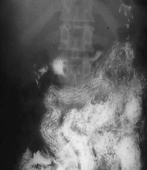 helminth parasitic disease viermi la un tratament pentru simptomele adulților