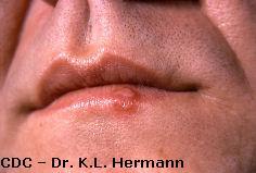 herpes hsv 1