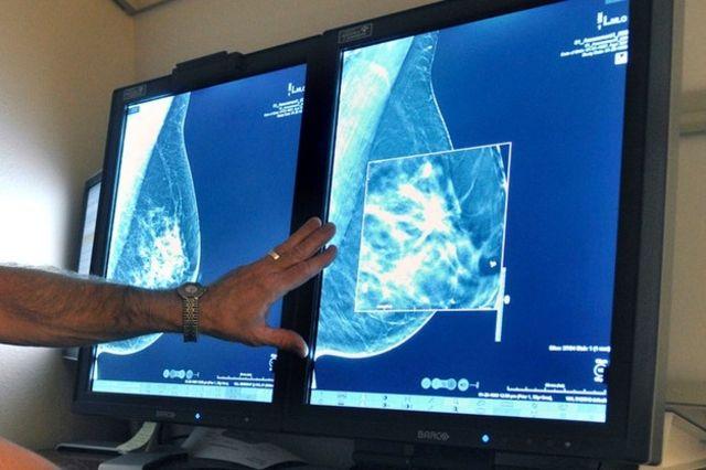 hpv cancer de la gorge