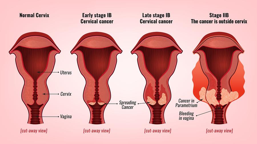 hpv pre cancer treatment