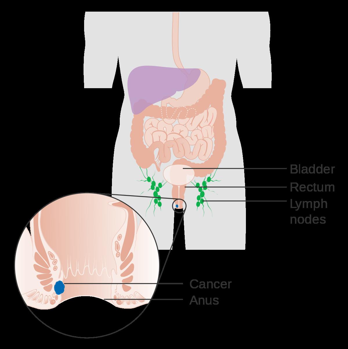 hpv virus rectal cancer