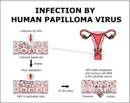 hpv wart virus infection condiloame în stadiu incipient