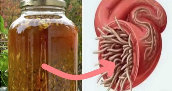 ce medicament pentru a trata viermii enterobioza ce