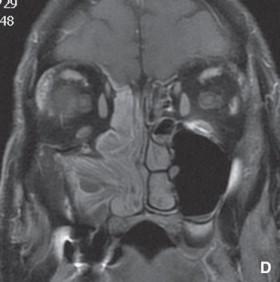 papilloma invertito del seno mascellare simptome cancer de ovare