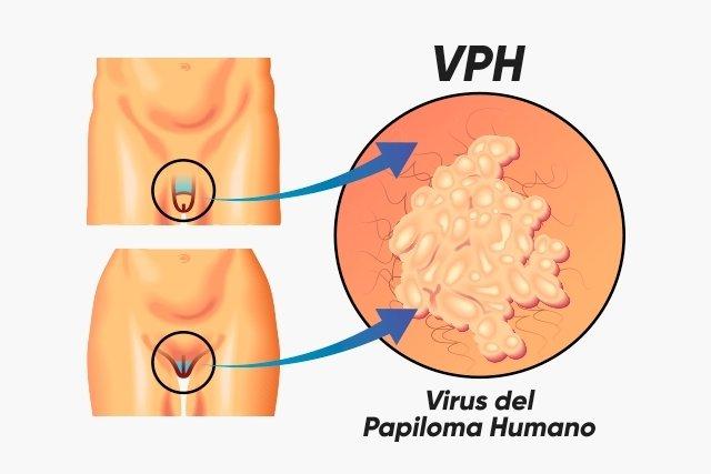 Papilloma în limba: cauze, tratament și prevenire