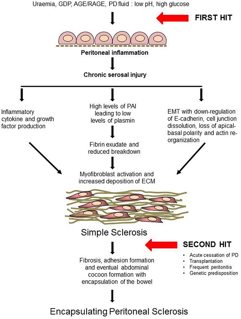 peritoneal cancer pathophysiology metastatic cancer colon liver