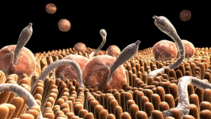 viermi semne de tratament pentru adulți săruri epsom detox colon